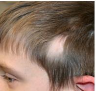 Triangular Alopecia