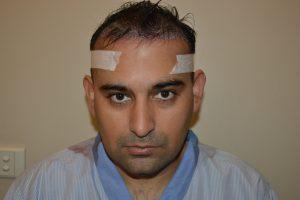 sachin dhawan skin n smile clinic 5