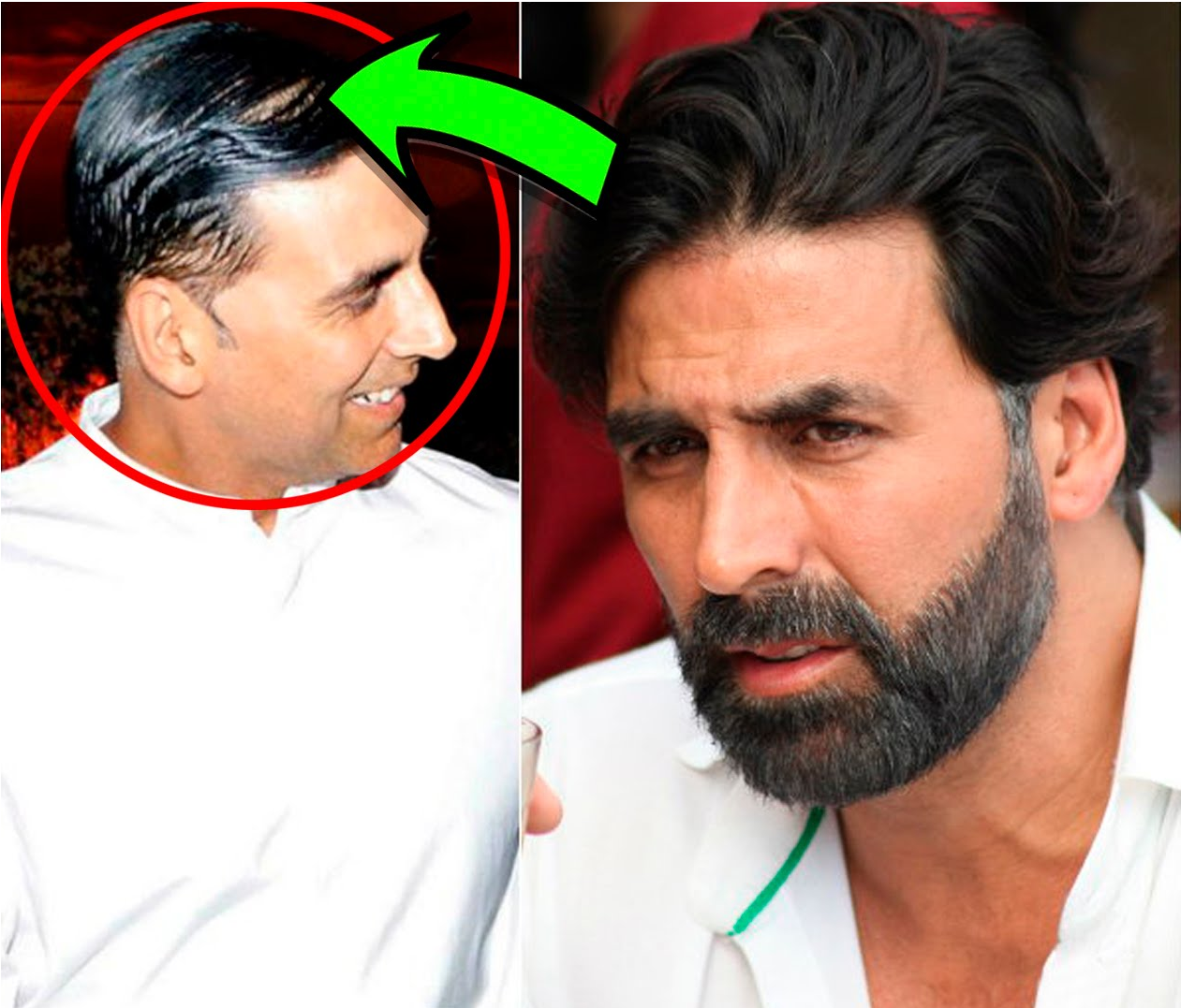 Bollywood Celebrity Hair Transplants Best Of Famous Actors Transplant Look So Natural