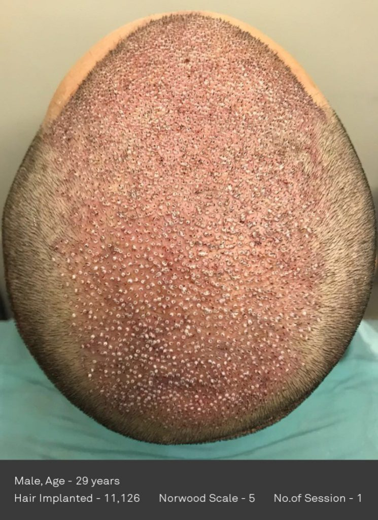 DHI International Transplants 11,126 follicles in a single session (!), the highest in the history of Hair Transplants!