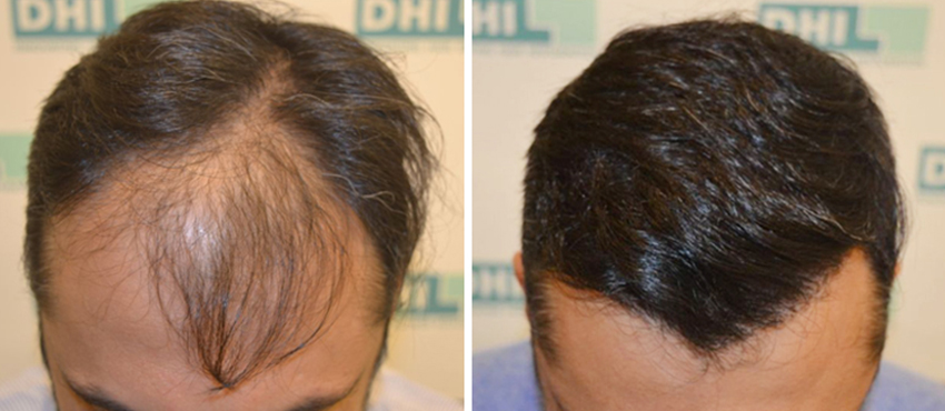 hair transplant blog - pic 7