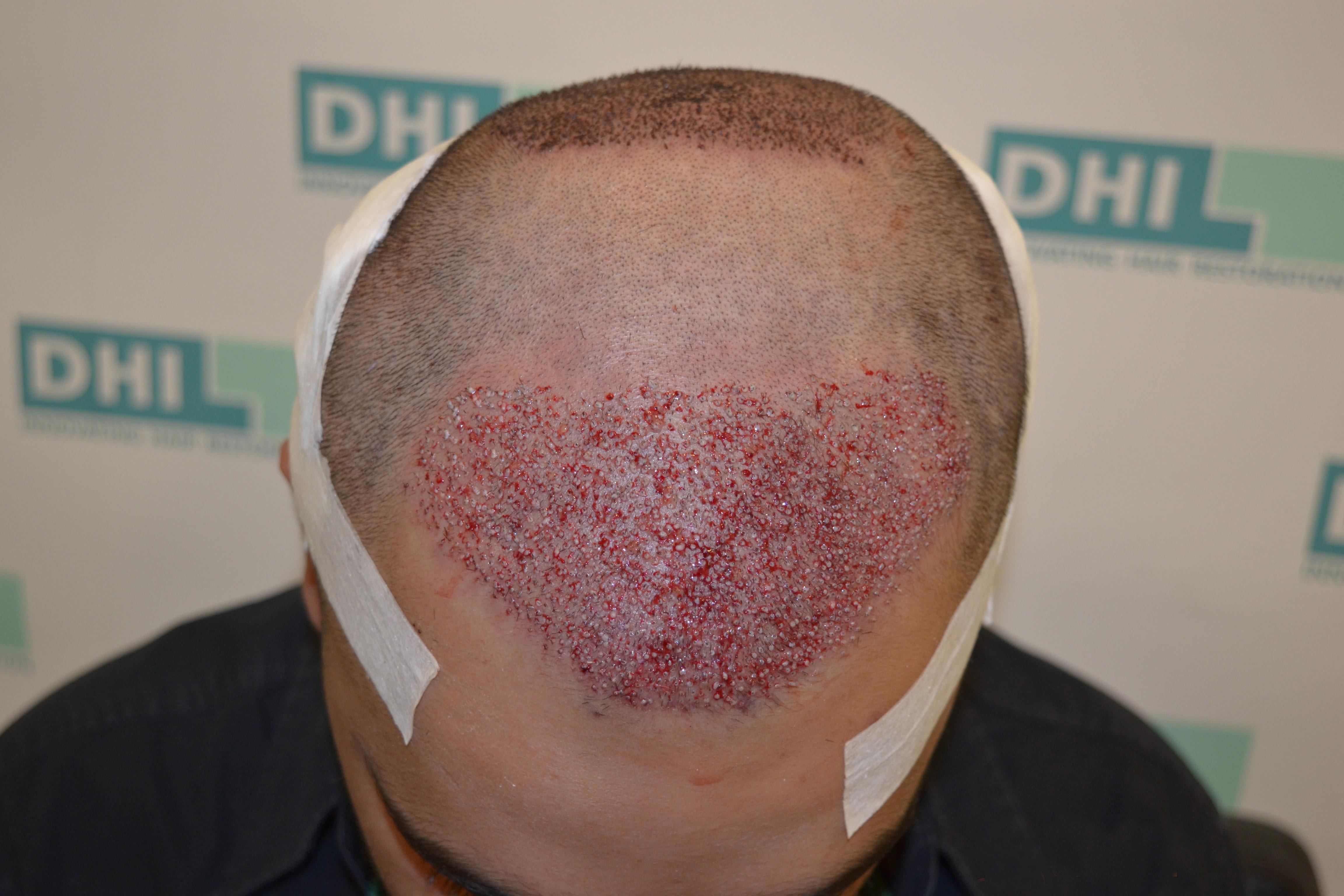 hair implantation
