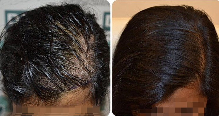 female hair transplant results- DHI