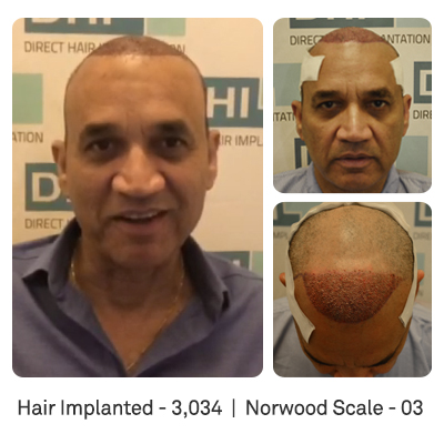 DHI's Patient Feedback on His Hair Transplant Procedure