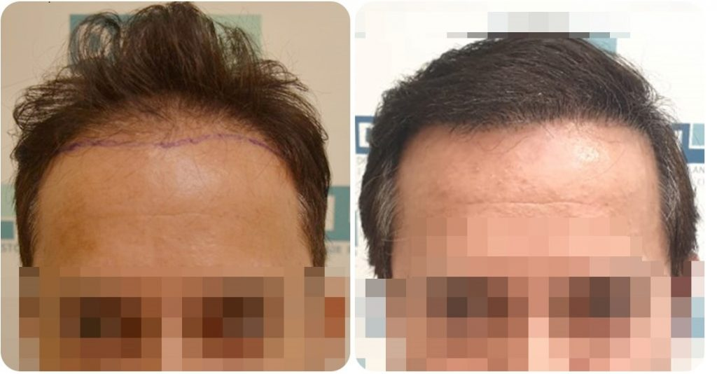 hair transplant results- DHI