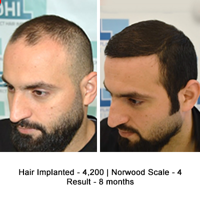 Amazing Hair Transplant Results of a Celebrity Hair Stylist - DHI