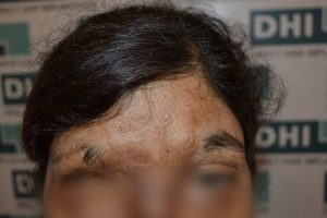 Eyebrow transplant for acid burnt victim