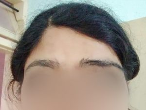 Eyebrow transplant for acid burnt victim dHI