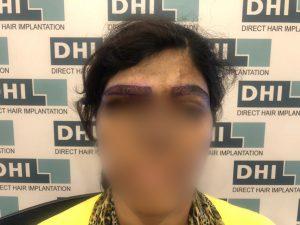 Free Eyebrow transplant for acid burnt victim dHI
