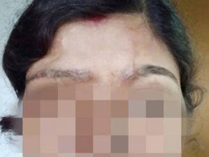 Eyebrow transplant for acid burnt victim dHI