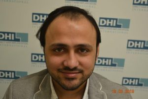 DHI Hair Transplant Journey of a young business owner 1