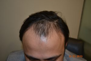 DHI Hair Transplant Journey of a young business owner 2