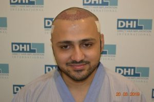 DHI Hair Transplant Journey of a young business owner 3