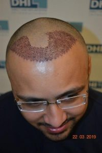 DHI Hair Transplant Journey of a young business owner 4