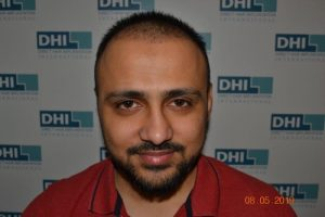 DHI Hair Transplant Journey of a young business owner 5