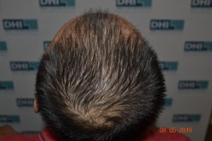 DHI Hair Transplant Journey of a young business owner 6