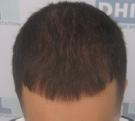 triangular-alopecia