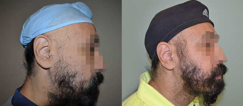 beard hair transplant results