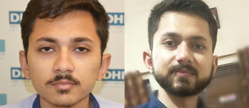 beard hair transplant results