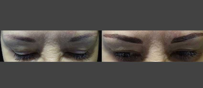 eyebrow restoration before and after image 1