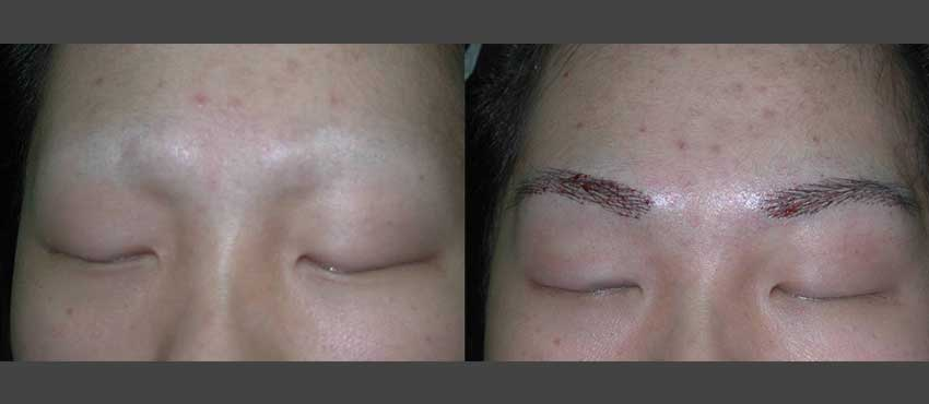 eyebrow restoration with micro blading services