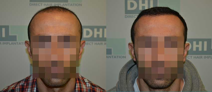 DHI before & after hair transplant results