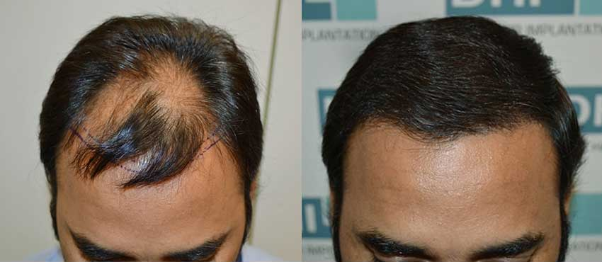 Pankaj Mirchandani before and after