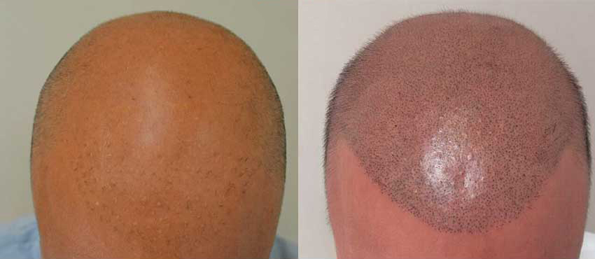 scalp hair transplant results
