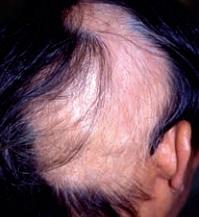Traction-alopecia