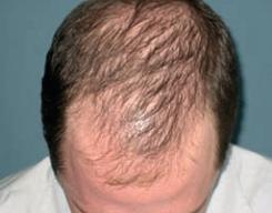 Types-of-Alopecia