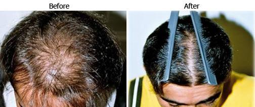 Hair Regrowth Treatment Best Hair Regrowth Treatment In India