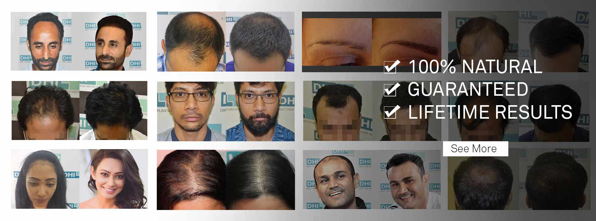 dhi hair transplant results