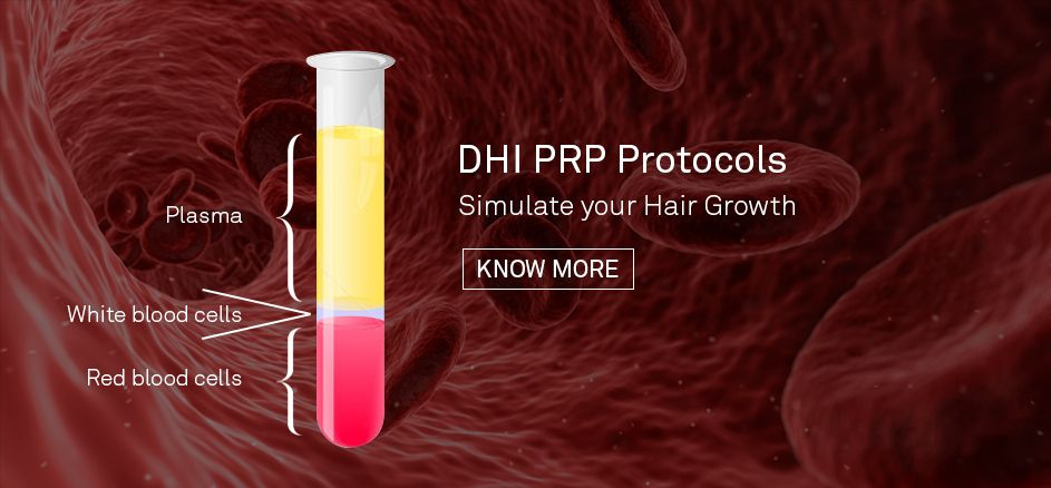 PRP Hair Treatment for Hair Loss – DHI International