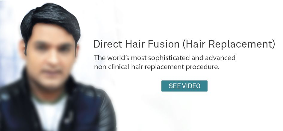DHI Direct hair fusion and hair replacement