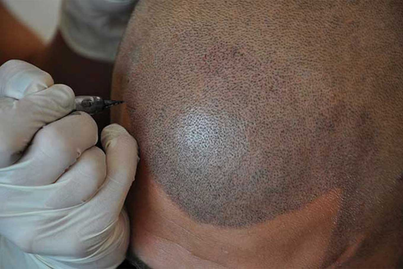 scalp micro pigmentation by DHI International