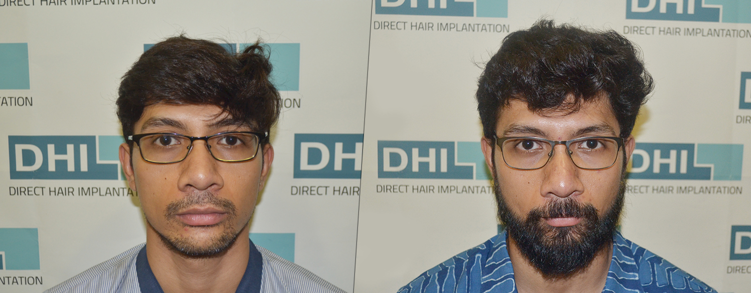 dhi natural hair results