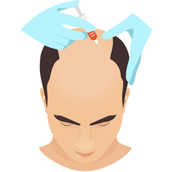 PRP Hair Treatment: Best PRP Treatment in India for Hair Loss - DHI