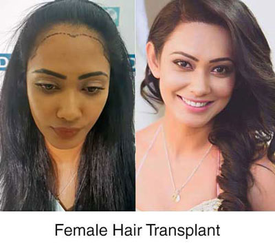 dhi india female hair transplant case