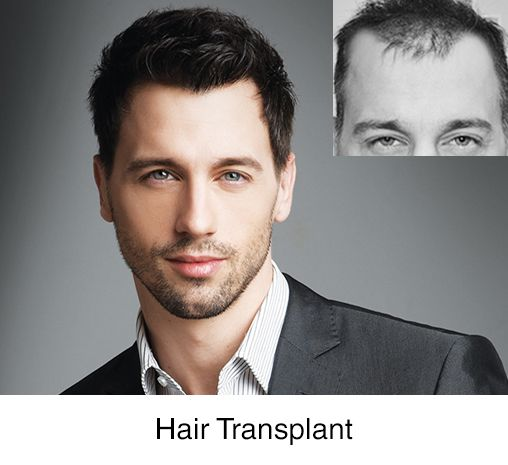 dhi india hair transplant case