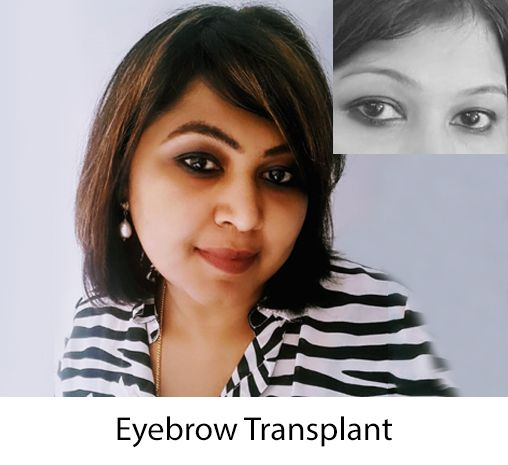 dhiindia hair transplant female