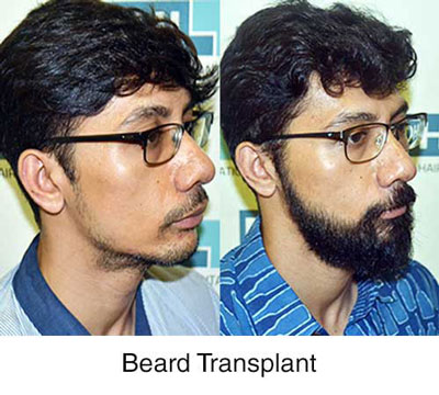 dhi india beard transplant result